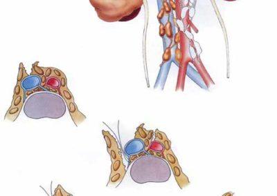 equipe per laparoscopia resezione prostata video 2017