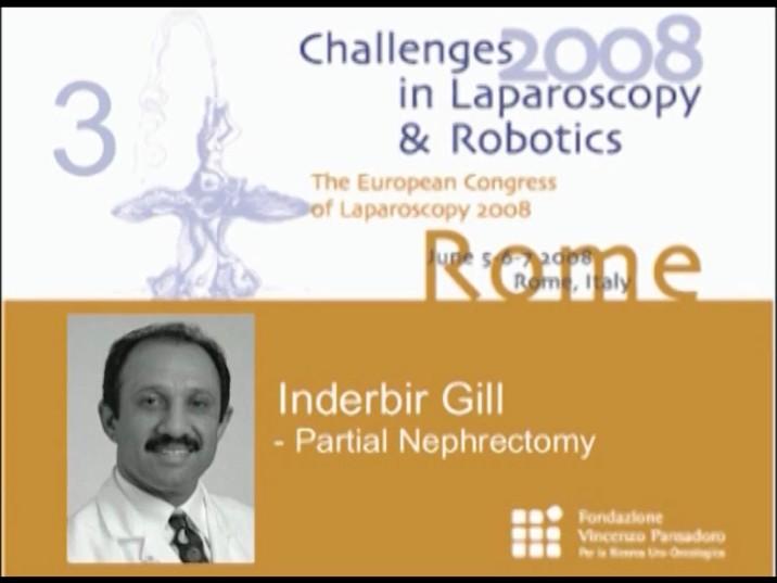 CILR 2008 – Inderbir Gill – Partial nephrectomy