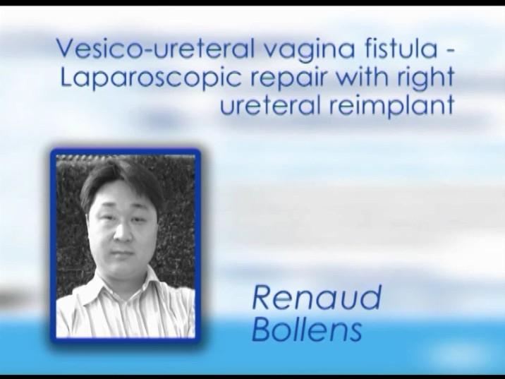 CILR 2012 – Renaud Bollens – Vesicoureteral vagina fistula laparoscopic repair with right ureteral reimplant
