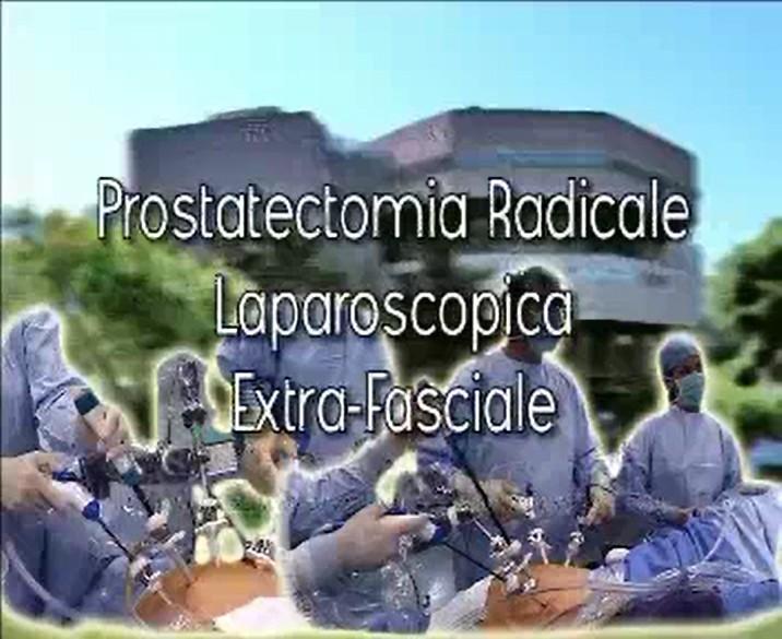 Laparoscopic surgery – Prostatectomia radicale laparoscopica extra fasciale